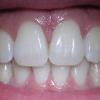 Электрический стул придумал стоматолог. Любопытные факты. Часть 2