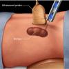 Что такое биопсия почки?