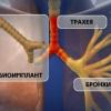 Одновременная пересадка трахеи и бронхов, искусственно выращенных в лаборатории