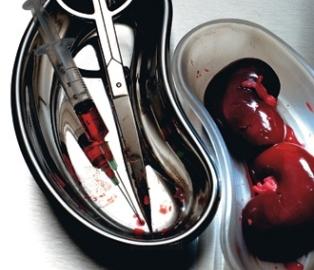 Ученые смогли создать искусственную человеческую почку из стволовых клеток