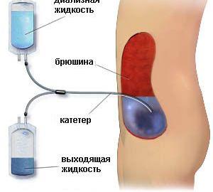 Российские ученые изобретают «искусственную почку», которую можно будет носить в рюкзаке